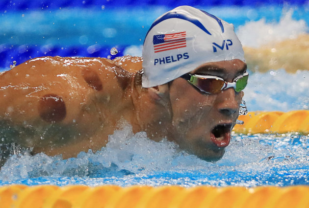 Cupping for Gold Medal Healing – Now Here at Transform!